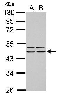 FBXO4 Antibody (PA5-30514) in Western Blot