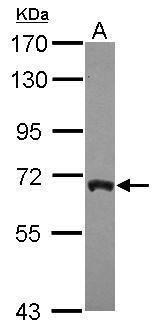 ARFGAP3 Antibody (PA5-30515) in Western Blot