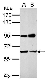 NARF Antibody (PA5-30516) in Western Blot