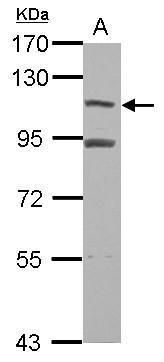 MTBP Antibody (PA5-30523) in Western Blot