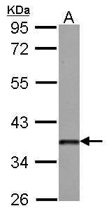 DKK3 Antibody (PA5-30525)