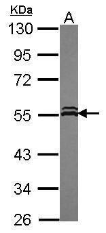 VPS4A Antibody (PA5-30528) in Western Blot