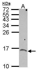 NXT1 Antibody (PA5-30534) in Western Blot