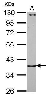CTNNA3 Antibody (PA5-30535) in Western Blot