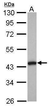 TMOD2 Antibody (PA5-30537)