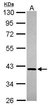 GMPPB Antibody (PA5-30541) in Western Blot