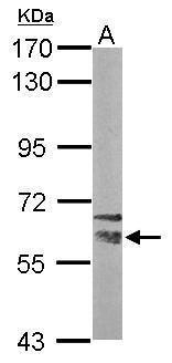 NRBP Antibody (PA5-30542) in Western Blot