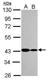 CARP Antibody (PA5-30548) in Western Blot