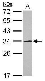 UTP11L Antibody (PA5-30550)