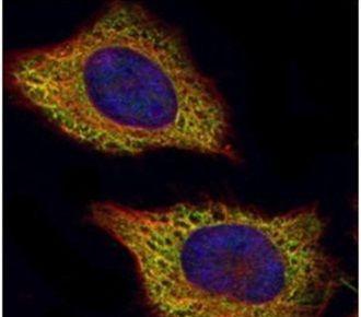 VPS28 Antibody (PA5-30553) in Immunofluorescence