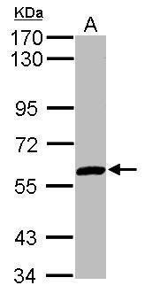 ZNF345 Antibody (PA5-30554) in Western Blot