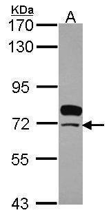 SWAP70 Antibody (PA5-30559) in Western Blot