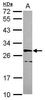 CDK10 Antibody (PA5-30567) in Western Blot