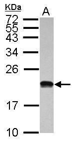 POLR1D Antibody (PA5-30575) in Western Blot
