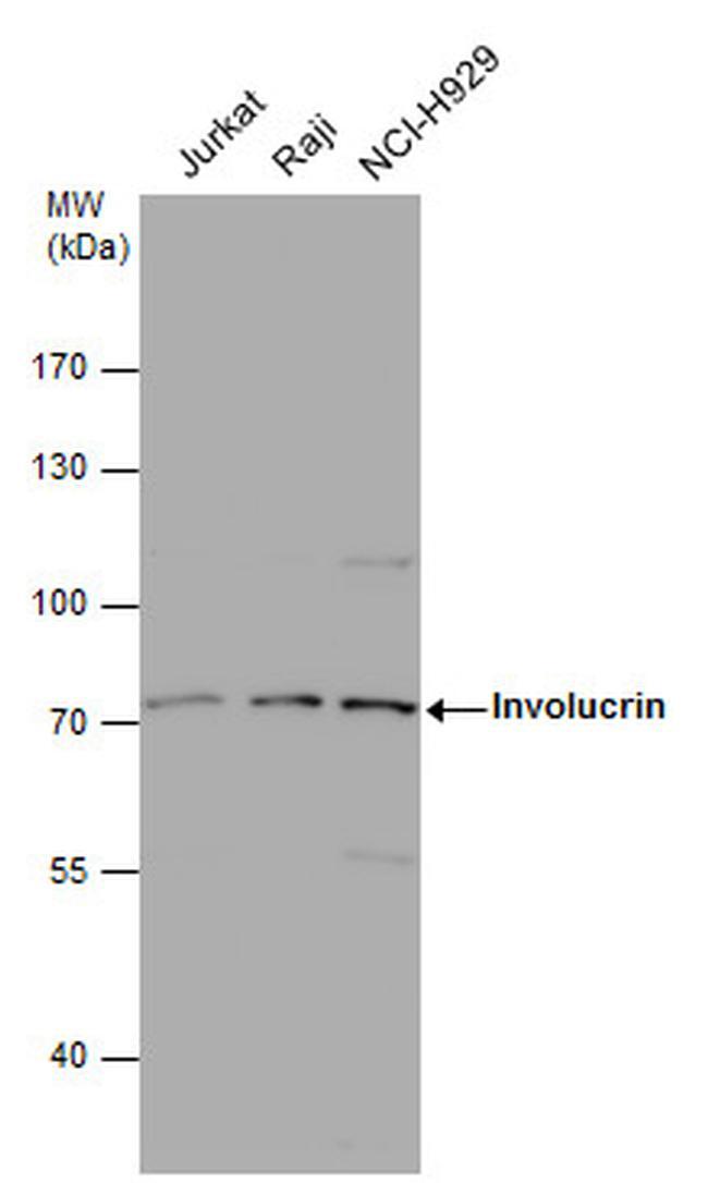 Involucrin Antibody (PA5-30582) in Western Blot