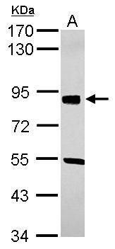 SOX6 Antibody (PA5-30599) in Western Blot