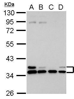 HLA-E Antibody (PA5-30600) in Western Blot