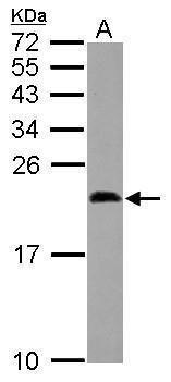 Midkine Antibody (PA5-30601)