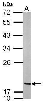 NME2 Antibody (PA5-30602)