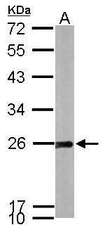 SOD2 Antibody (PA5-30604) in Western Blot