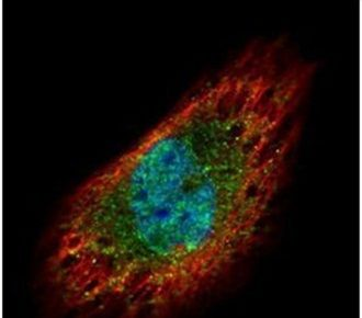 EXOSC3 Antibody (PA5-30610)