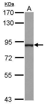 NCKIPSD Antibody (PA5-30625)