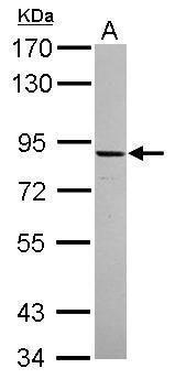 ADAM22 Antibody (PA5-30639) in Western Blot