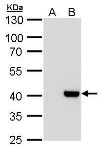 Macro H2A.2 Antibody (PA5-30648) in Western Blot