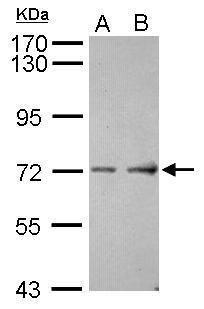 ASIC4 Antibody (PA5-30649) in Western Blot