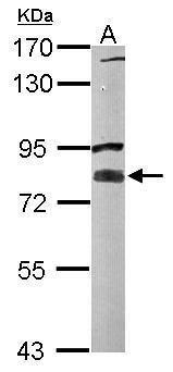 Vezatin Antibody (PA5-30651) in Western Blot