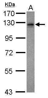Vezatin Antibody (PA5-30652) in Western Blot