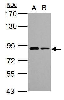 VPS35 Antibody (PA5-30654) in Western Blot