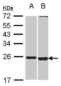 SOHLH2 Antibody (PA5-30658) in Western Blot