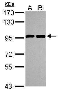 ANKZF1 Antibody (PA5-30665) in Western Blot