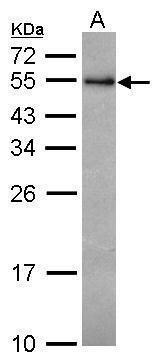RCBTB1 Antibody (PA5-30672) in Western Blot