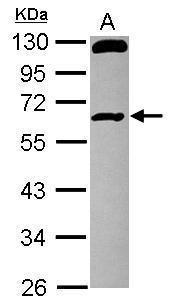 RCBTB1 Antibody (PA5-30673)