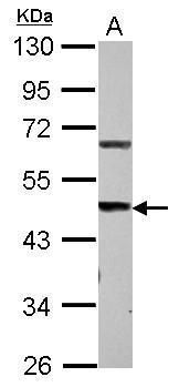STEAP3 Antibody (PA5-30676)