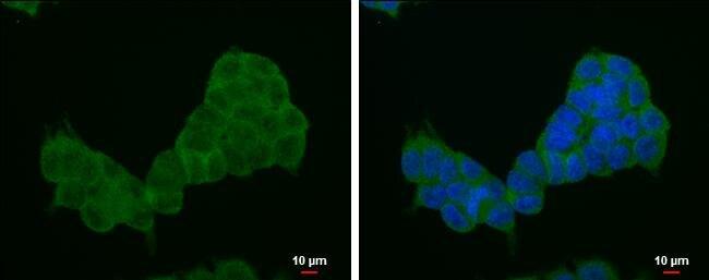 4E-BP1 Antibody (PA5-30679) in Immunofluorescence