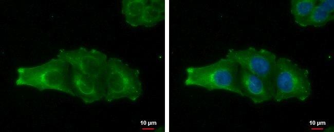 MAGEA4 Antibody (PA5-30689) in Immunofluorescence