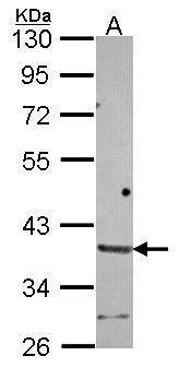 HAPLN2 Antibody (PA5-30698) in Western Blot