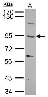 THSD1 Antibody (PA5-30699) in Western Blot