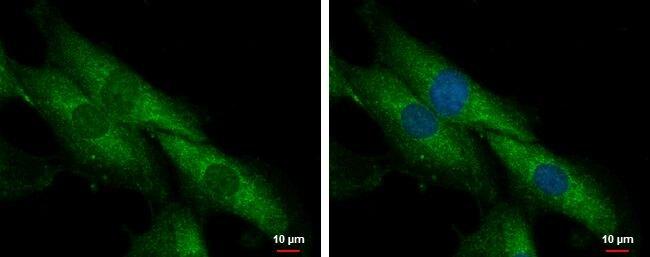 SLC25A23 Antibody (PA5-30702)