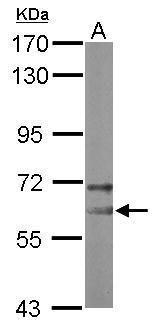 NOP58 Antibody (PA5-30708) in Western Blot