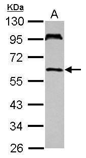 UBASH3A Antibody (PA5-30713) in Western Blot