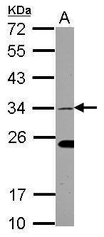 EHF Antibody (PA5-30716) in Western Blot