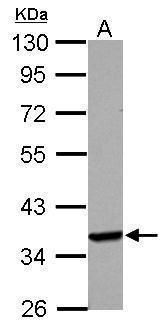 Langerin Antibody (PA5-30722) in Western Blot