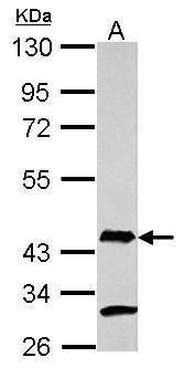 AIM2 Antibody (PA5-30728) in Western Blot