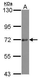 PRKD3 Antibody (PA5-30729) in Western Blot