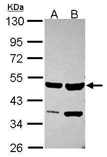 SMYD2 Antibody (PA5-30732) in Western Blot