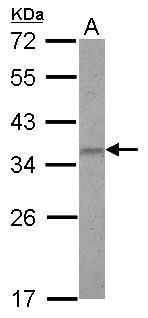 ZNF501 Antibody (PA5-30734) in Western Blot